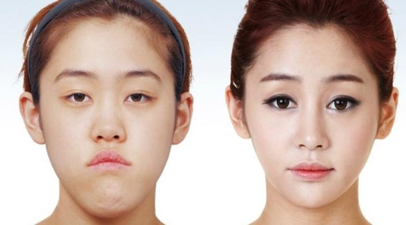 Ini Jenis Operasi Plastik Paling Banyak Peminatnya Di Korea Selatan -  Womantalk