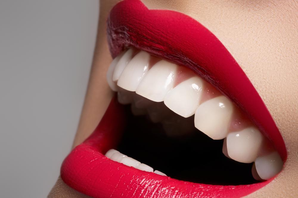 9 Makanan Untuk Memutihkan Gigi Womantalk